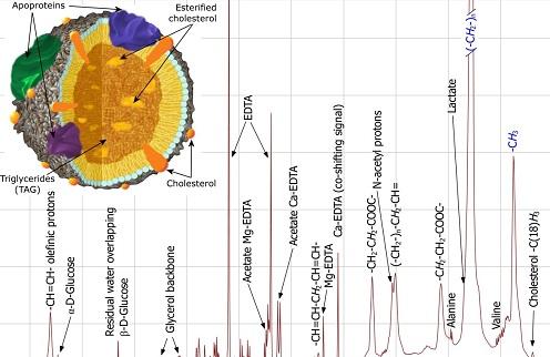 Illustration of NMR spectrum of blood plasma